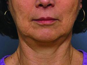 BTL-EXILIS-Meridien-lower-face-neck-1-pred-zakrokem